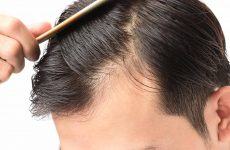 Benefit of micro needling for hair loss issue